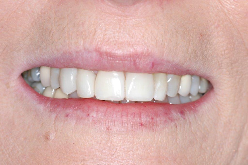 Dent mal positionnée