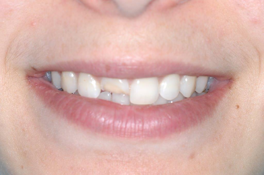 Dent cassée avant